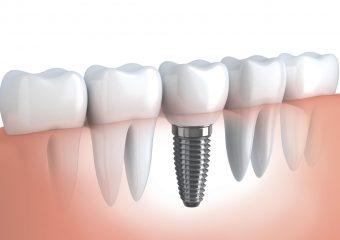 Czym są implanty zębowe?